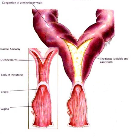 how to tell if cervix open or closed