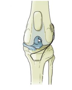 Extracapsular Suture Repair